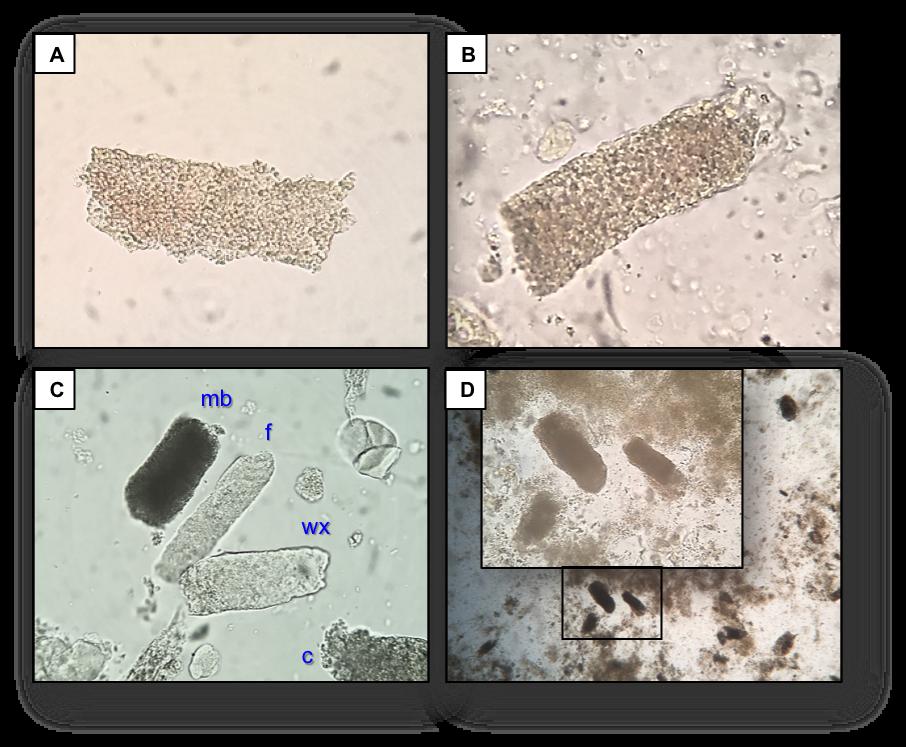 Urine Sediment of the Month: Granular &