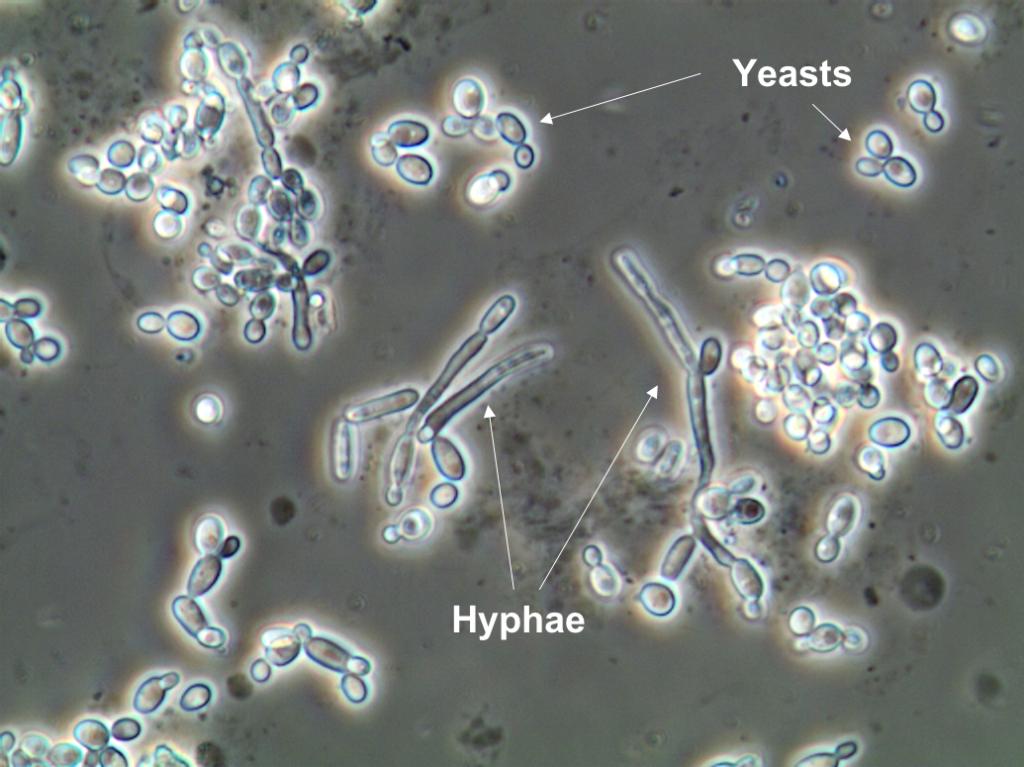 bacteria 2 urine